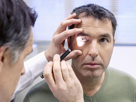 general-eye-health
